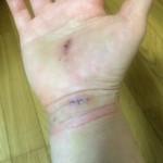 主根管症候群,手術後,抜糸
