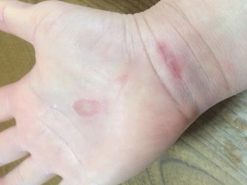 手根管症候群術後1ヶ月