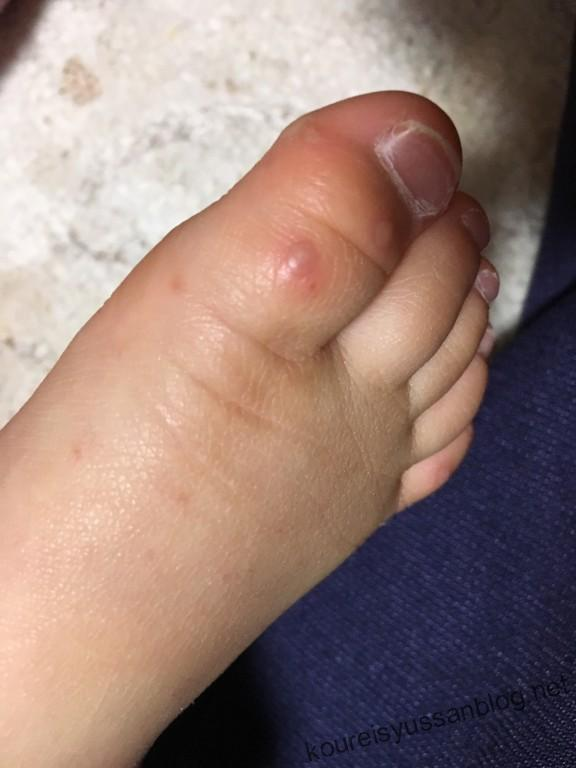手足口病足の画像